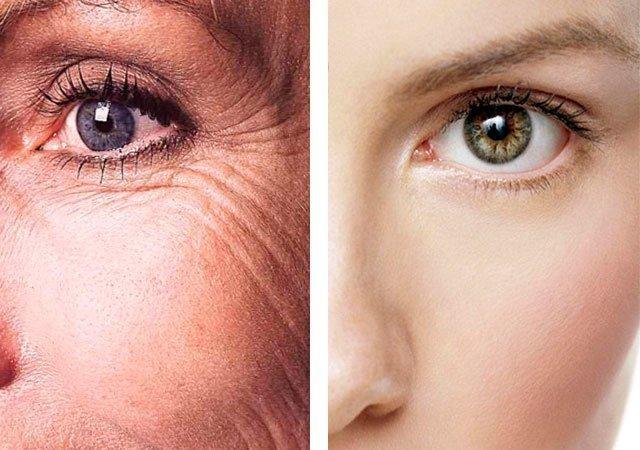 Морщины под глазами - как избавиться в домашних условиях