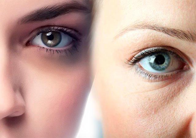 Мешки под глазами есть шанс из убрать - даже в домашних условиях ! Как избавиться от мешков под глазами в домашних условиях - Женское мнение