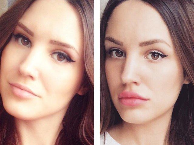 губы фото до и после увеличение