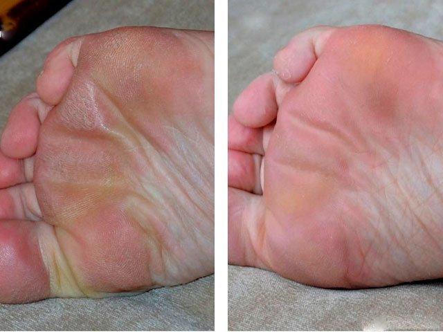 Отзыв о отшелушивающая маска-носки для ног skinlite | эффекта не.