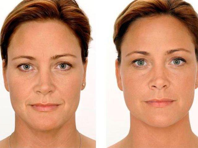 крем под глаза эффективный от морщин