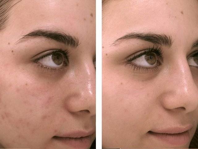 уз-чистка лица фото до и после