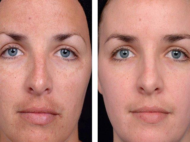 7 мифов о старении кожи