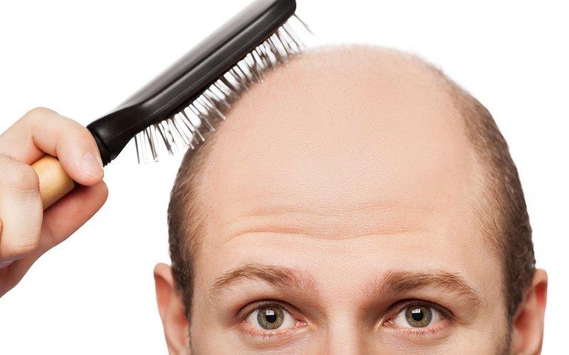 Выпадение волос по Смирнову