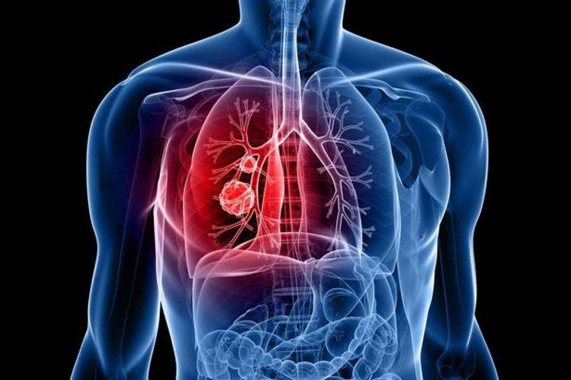 Заговор от 40 смертельных болезней