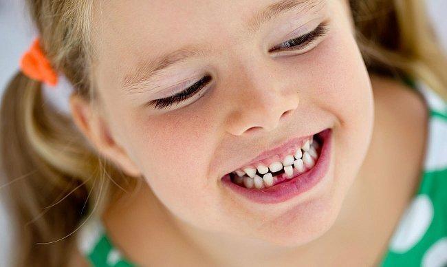Как заговорить зубную боль?