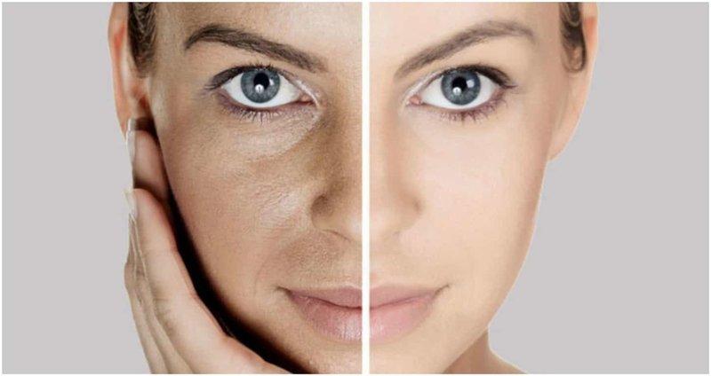 Лицо до и после использования маски из кокосового масла