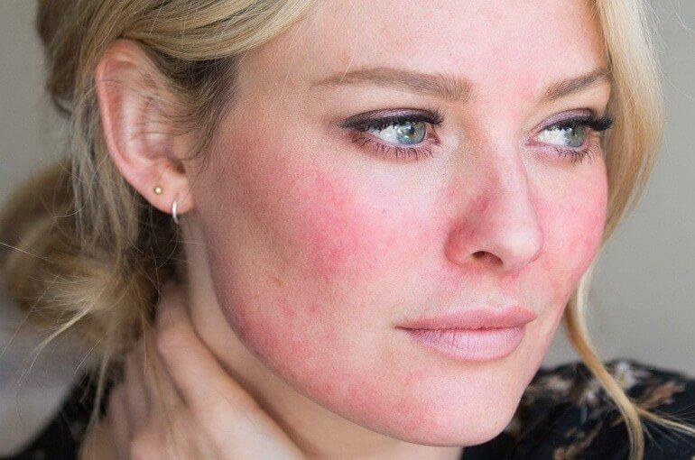 Причины покраснения кожи лица