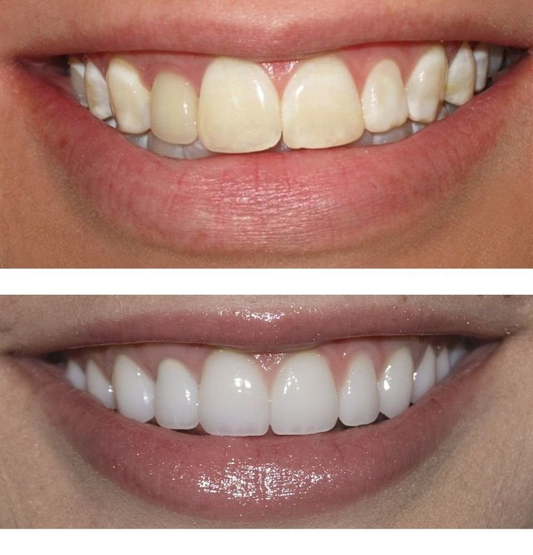 "Perfect Smile Veneers: ""до"" и ""после"""