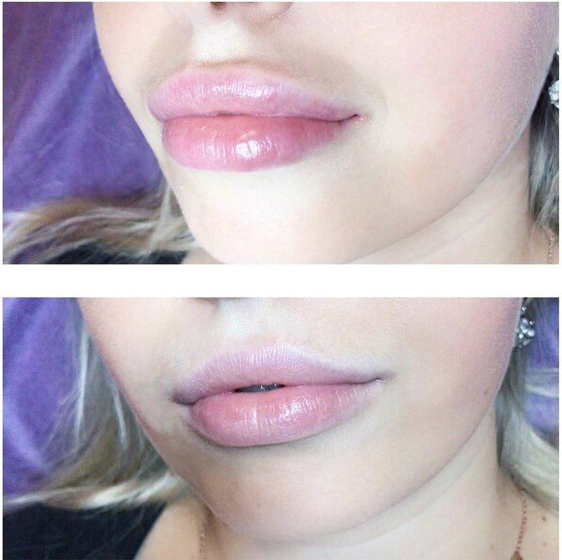 Оттек губ после увеличения гиалуроновой кислотой