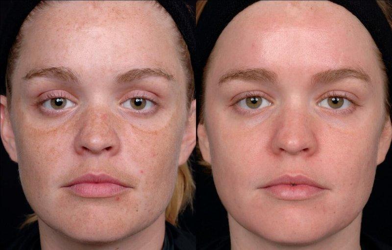 До и после лазерной чистки лица