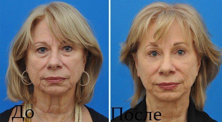 Результат ультразвукового лифтинга: до и после