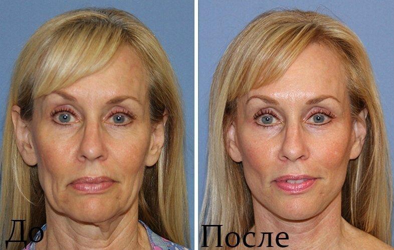 Результат до и после процедуры ультраформер лифтинг