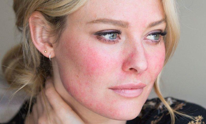 Дерматологическое заболевание на лице