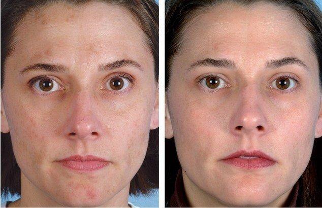 До и после вакуумной чистки лица