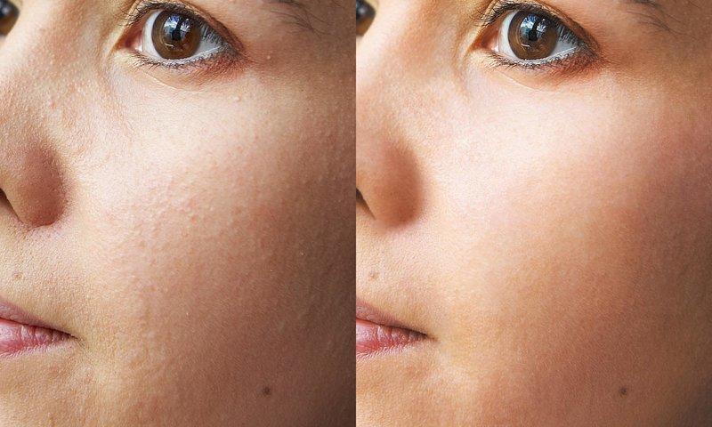 До и после ультразвуковой чистки лица