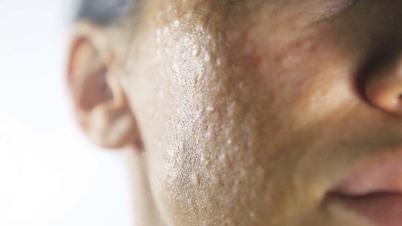 Папулы диаметром 1 мм на лице