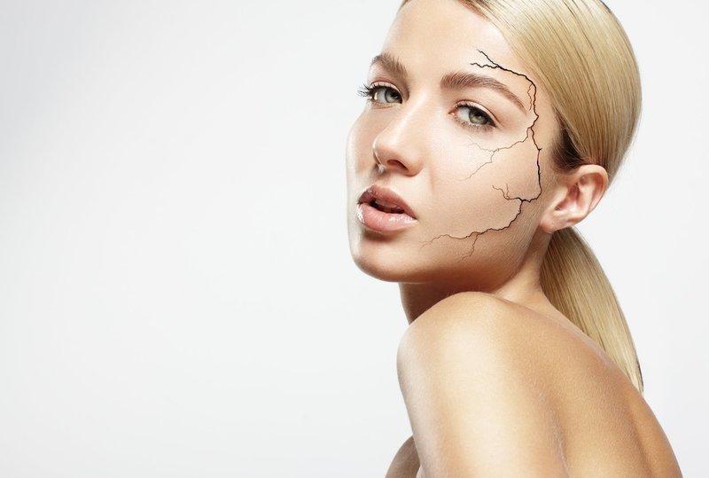 Девушка с сухим типом кожи лица