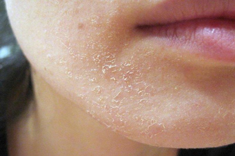 Почему шелушится кожа?