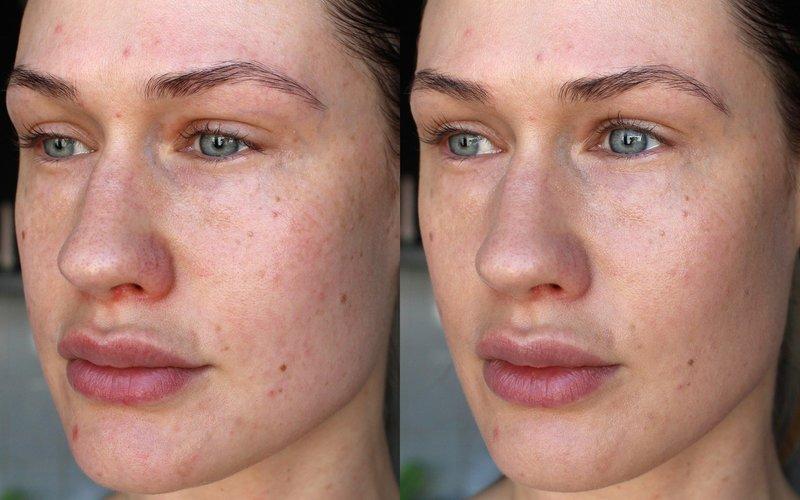 Эффект пилинга prx-t33: фото до и после первой процедуры