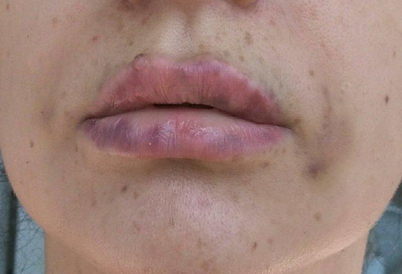 Последствия неудачного увеличения губ