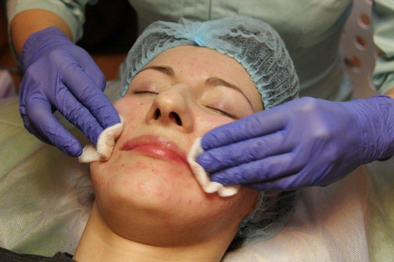 Обработка кожи после процедуры биоревитализации