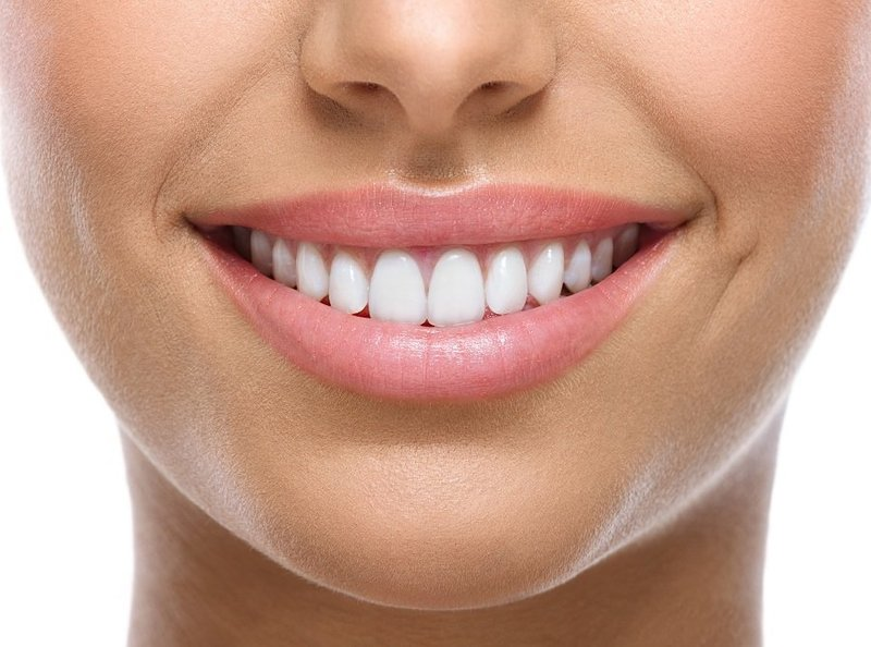 Улыбка с Perfect Smile Veneers