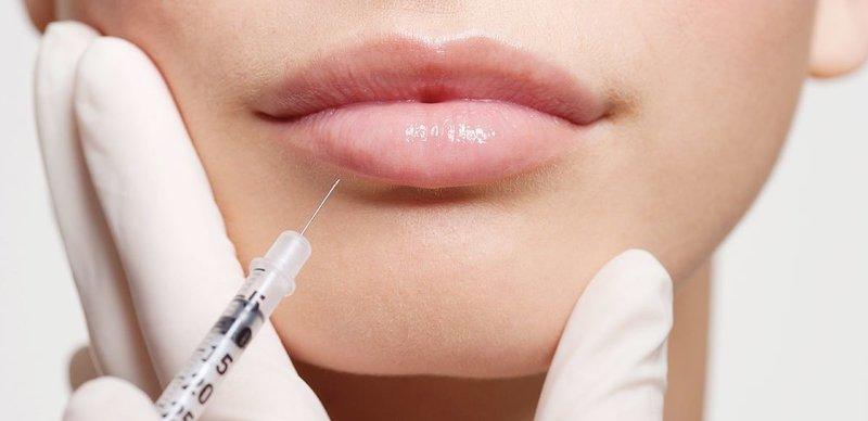 Инъекция гиалуроновой кислоты в губы