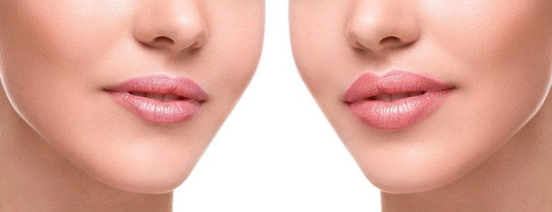 Губы, увеличенные филлерами (до и после)