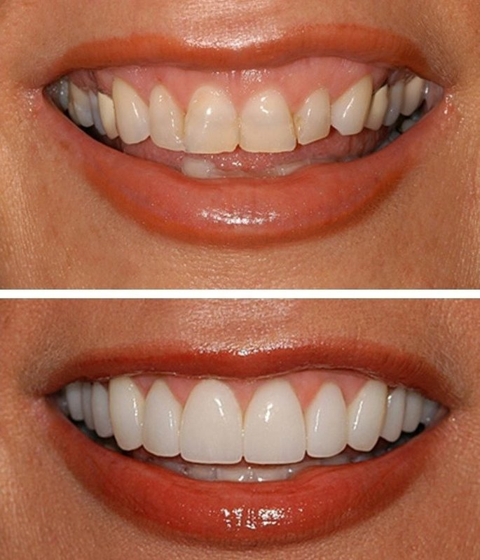 "Виниры Perfect Smile Veneers: ""до"" и ""после"""