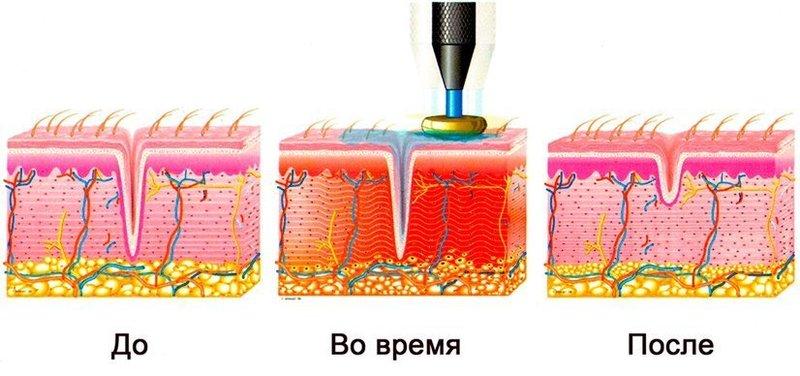Механизм воздействия РФ-лифтинга
