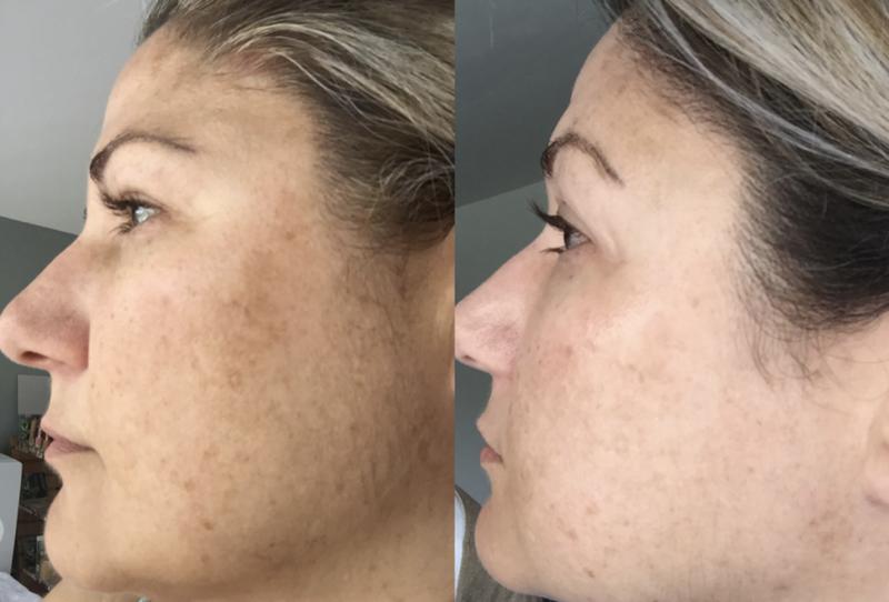 Эффект пилинга prx-t33: фото до и после четырёх процедур