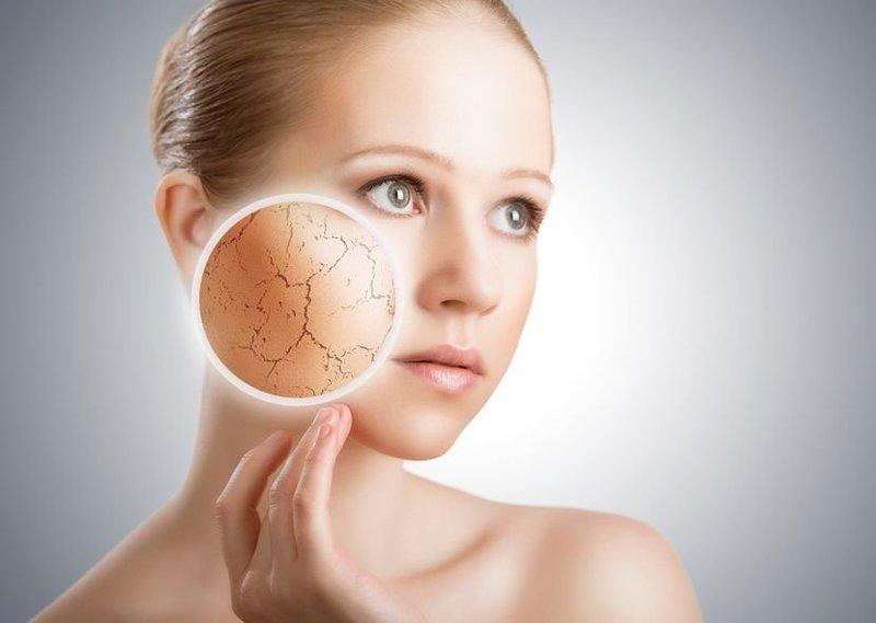Сухая кожа у женщины после 30 лет