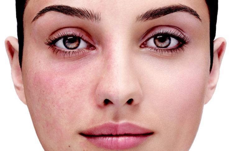 Какой выбрать крем от красноты на лице?