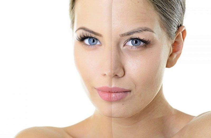 Восстановление кожи после чистки