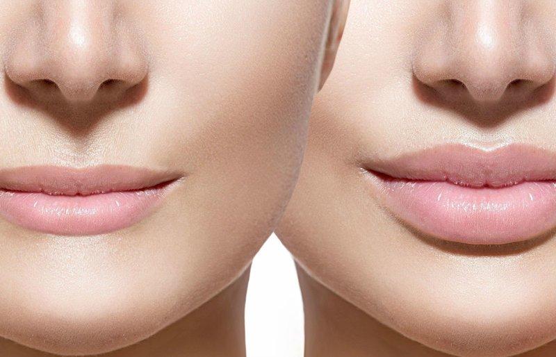 Губы до и после увеличения гиалуроновой кислотой