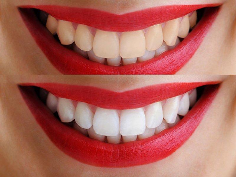 Отбеливание зубов в дома