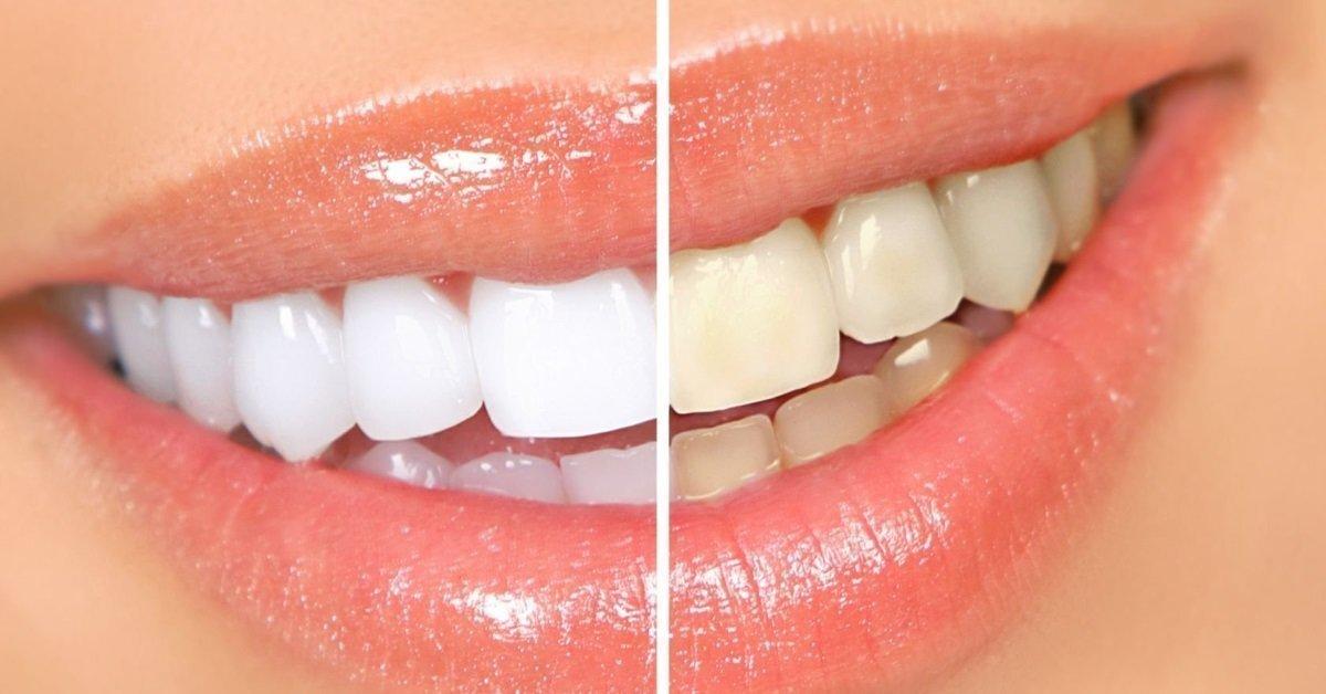 Отбеливание зубов за месяц