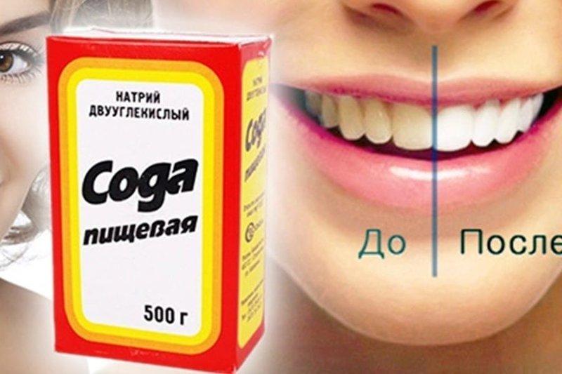 Пищевая сода отбеливает зубы