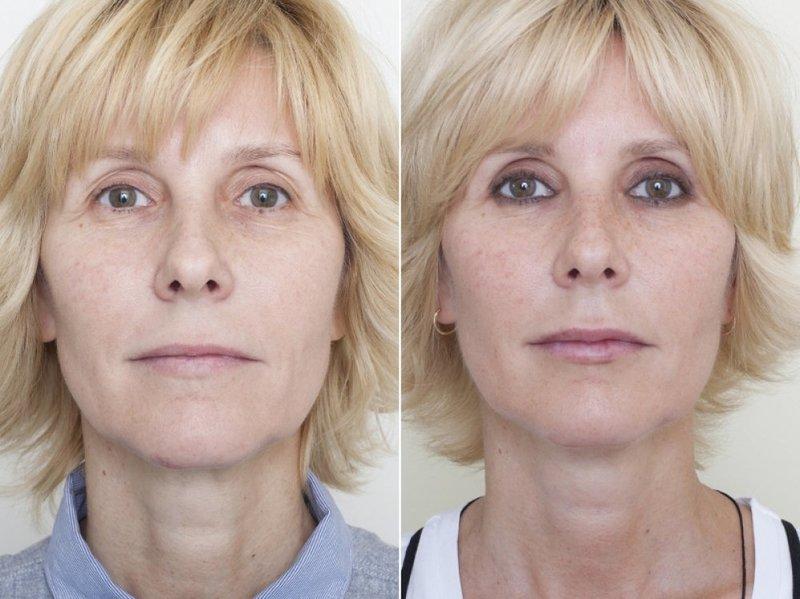 Подтяжка лица нитями: отзывы клиентов