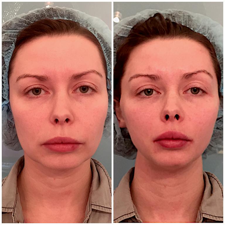Нитевая подтяжка лица: фото до и после процедуры