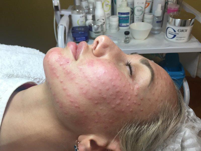 Папулы на лице после процедуры