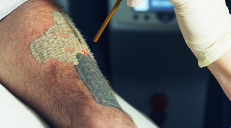 Эффект от удаления тату лазером