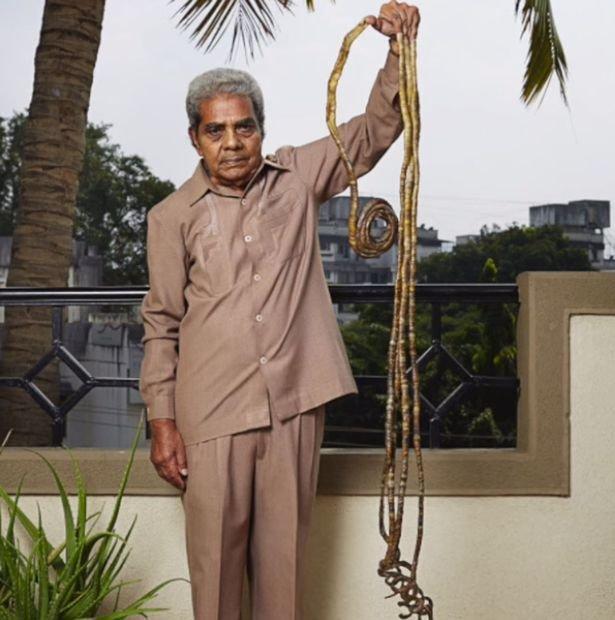 Шридхар Чиллал - индус с самыми длинными ногтями в мире
