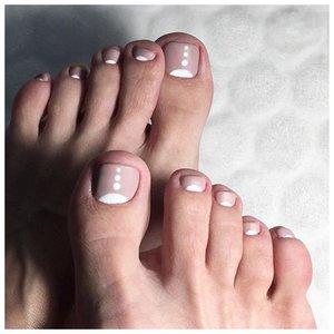 Лунки на ногах