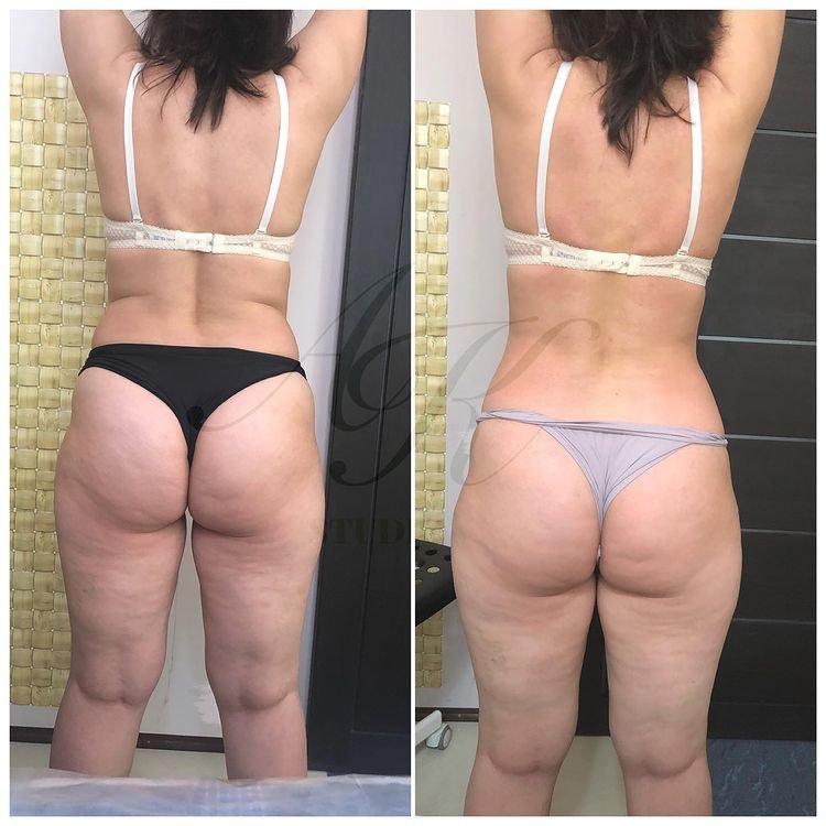 Лимфодренажный массаж фото до и после