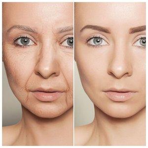 Устранение морщин до и после фото