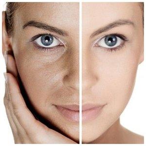 Устранение морщин до и после