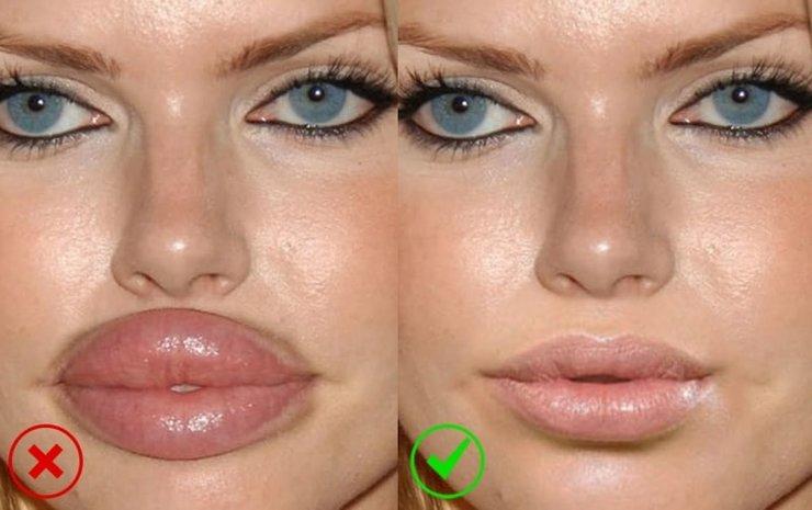 Уменьшение губ