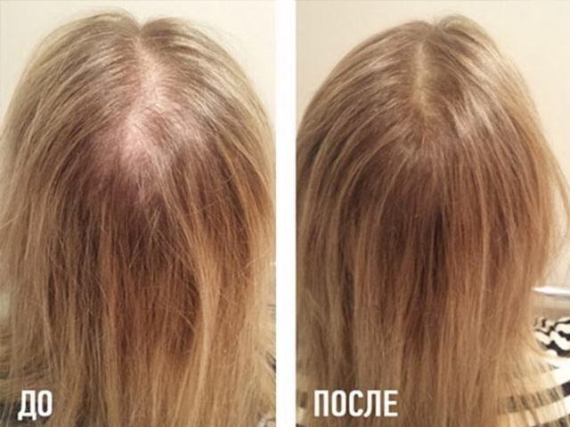 Результат после мезотерапии для волос: до и после (фото)